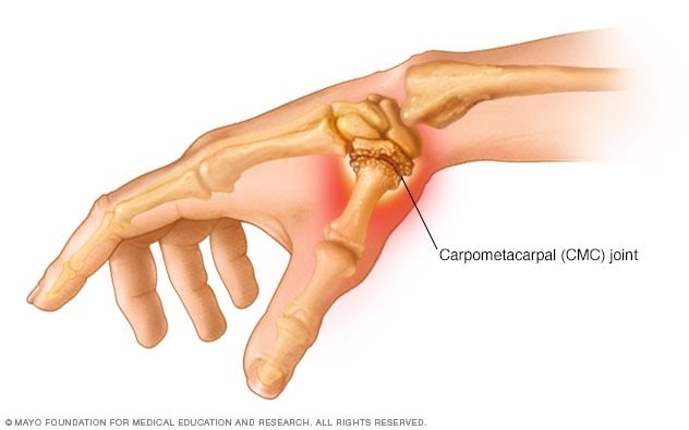 All You Should Know About Thumb Joint Pain