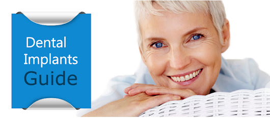 Guide to Dental Implants from Your Dentist in Mill Hill - Chase Lodge Dental in Mill Hill