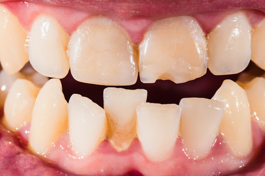 Are Crooked Teeth Really That Bad? Actually, Yes