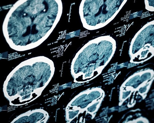 New acquired brain injury, stroke transitional program opening in Hamilton | TheSpec.com