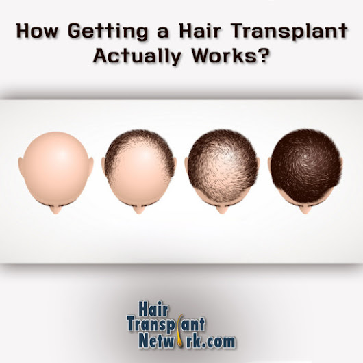 How Getting a Hair Transplant Actually Works?