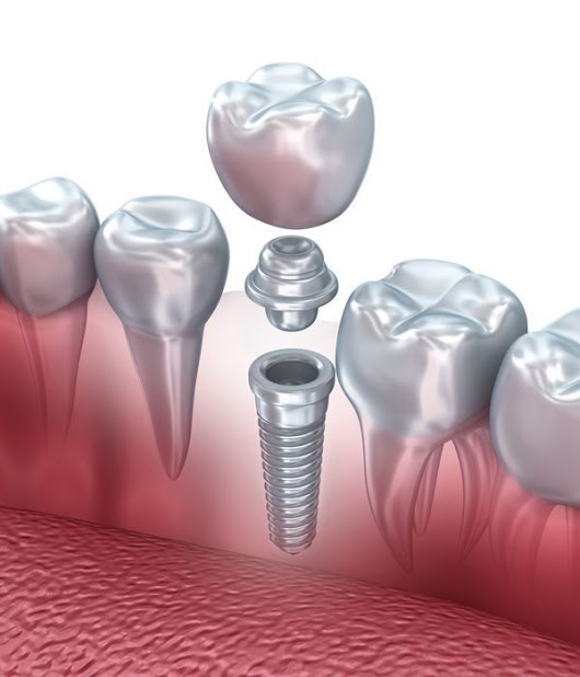 Memphis Dental Implants and Implant Dentistry — Cordova, Tennessee