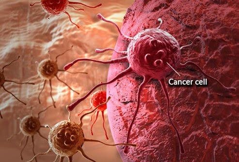 An illustration of cancer cells.