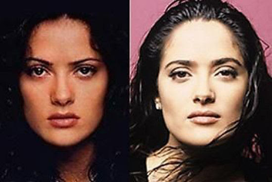 Famosos antes e depois da cirurgia plástica
