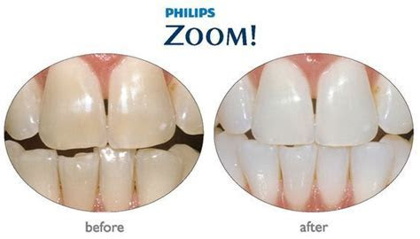 17 Best images about Zoom Whitening on Pinterest   We