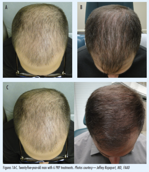 Incorporating Platelet-Rich Plasma for Hair Restoration Into Your Practice | The Dermatologist