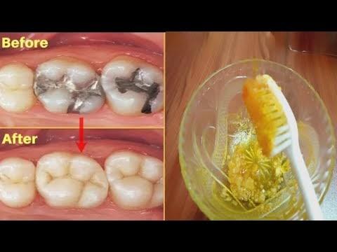 మీ పిప్పి పళ్ళు ,పళ్ళు నొప్పి ,గార వెంటనే తొలగిపోవాలంటే ఇలాచేయండి|how to remove teeth pain
