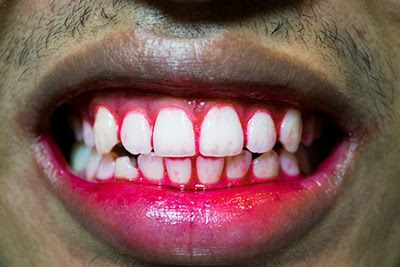 5 Most Common Signs You Have Gum Problems