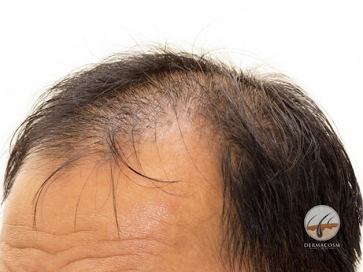 PRP for hair loss & baldness: does it work? - dermacosm