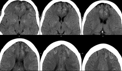 necosis cortical hemorr