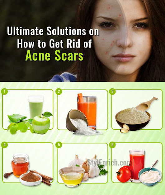 How to Get Rid of Acne Scars With Top 10 Ultimate Solutions?