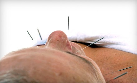 One or Three Regular or No-Needle Acupuncture Treatments at Natural Health Chiropractic (Up to 59% Off)