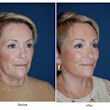 How a facelift can help you look younger