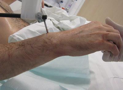 Un paciente recibe dos brazos de un fallecido en el hospital en Munich, Alemania