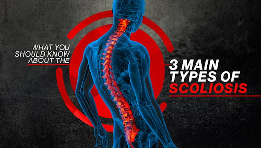 What You Should Know About the 3 Main Types of Scoliosis - Piedmont Physical Medicine & Rehabilitation, P.A.