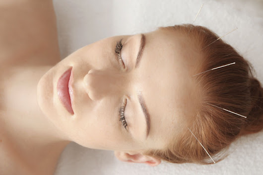 Chronic Fatigue Recovery With Acupuncture