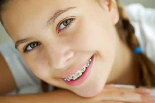 Your Braces from Start to Finish - Belmar Orthodontics