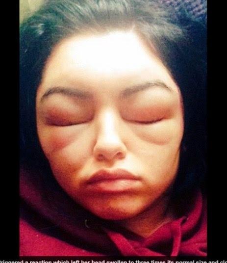 Moça fica cega e tem rosto desfigurado depois de pintar cabelo