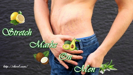 15 Ways On How To Remove Stretch Marks On Men