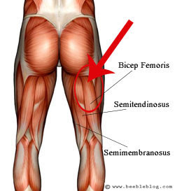 Hamstring injury - biceps femoris