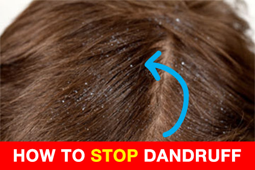 How To Get Rid Of Dandruff in 4 Simple Steps - Nizoralshop.com