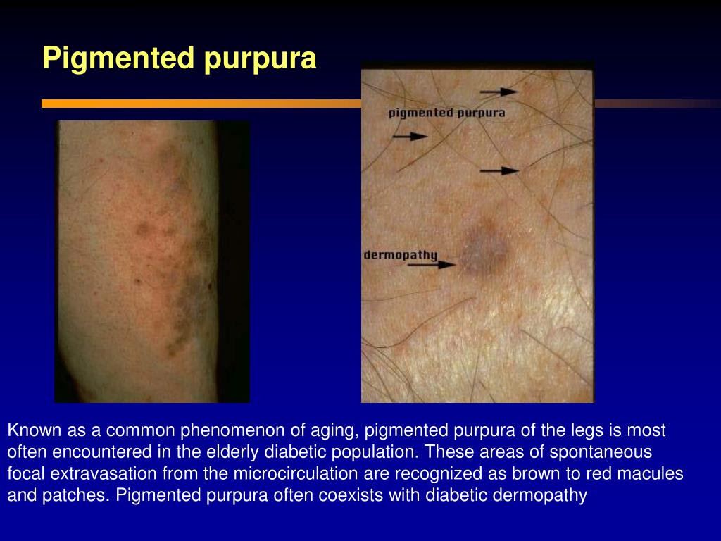 PPT - Diabetic Dermopathy PowerPoint Presentation - ID:460887