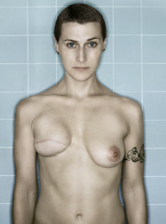 Kerry Mansfield - Aftermath: Battling Breast Cancer | LensCulture