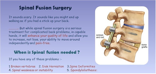 Spinal Fusion alternatives, when needed, time to recover | A highly preferred Spine procedure for…