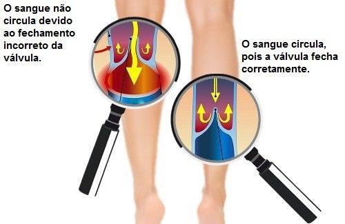 http://melhorcomsaude.com/melhorar-circulacao-bracos-pernas/