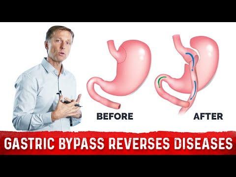 Why Gastric Bypass Reverses Diabetes and Many Illnesses