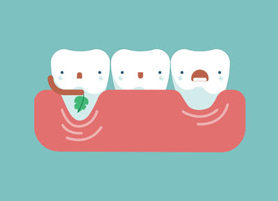 Periodontics Can Save Your Smile by Restoring Your Gums
