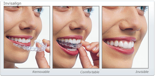 Why You Need Invisalign Dental Treatment