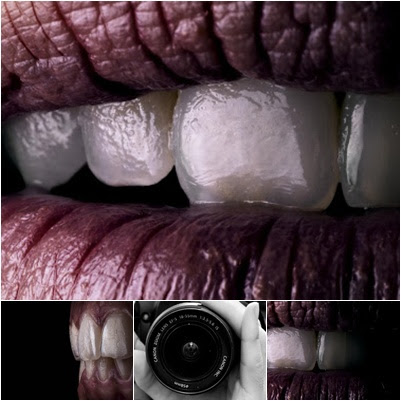 Gnathos Fotografia Dental Una Herramienta Imprescindible