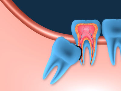 What You Should Know About Wisdom Teeth Removal in San Jose
