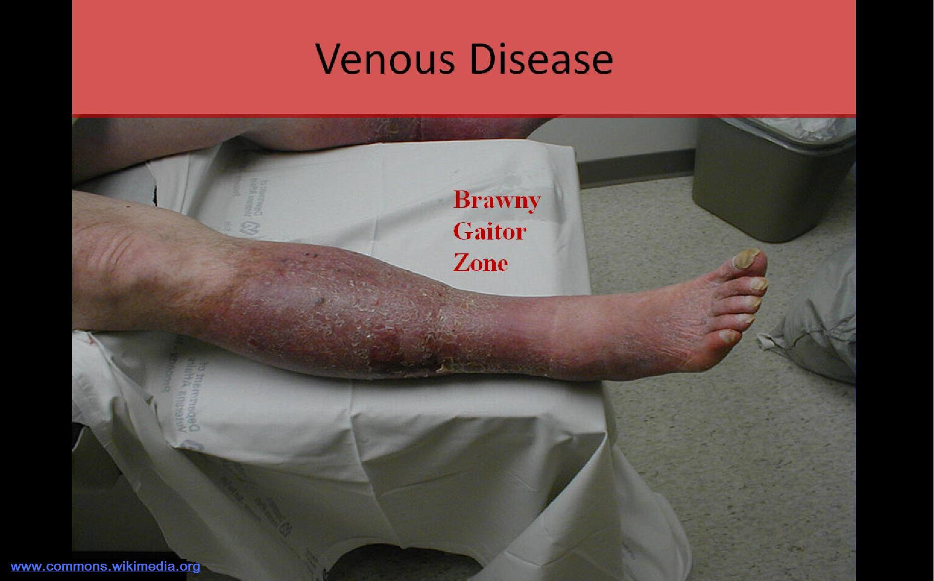 Ultrasound Registry Review - Extremity Venous