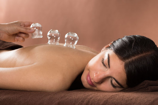Cupping FAQs | Accurate Acupuncture | Phoenix AZ | 928-274-1980