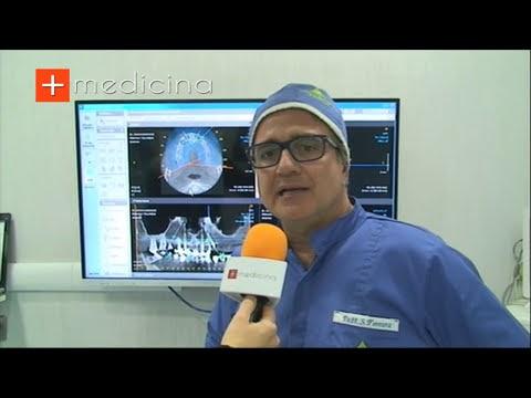 Quanto dura un impianto dentale? Risponde alla domanda il Dott. Salvatore Ferrara - Odontoiatra e Chirurgo Maxillo Facciale - Napoli