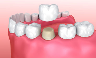 Dental Crowns and Bridges at Your Dentist