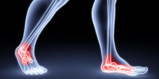 Build Your Arch: Why Flat Feet Kill Your Squat