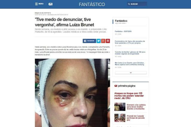 Divulgada imagem de Luiza Brunet com hematoma no rosto Reprodução/TV Globo/Divulgação