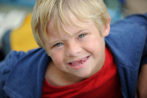 Boy with missing teeth smiling