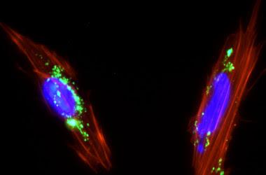 <p>Células mesenquimales de placenta con nanopartículas de sílice mesoporosa (color verde) internalizadas en su citoplasma. / Juan Luis Paris</p>