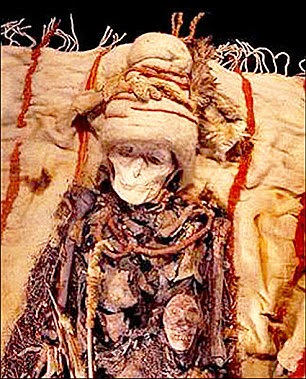 The wound suggests that the female (pictured), who died in her 40s, must have lived for at least a month, or even longer, after receiving the surgery