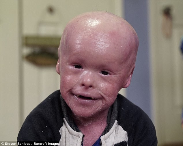 Evan Fasciano, now five, was born with Harlequin Ichthyosis, a genetic disorder that leaves him with scales across his entire body. His parents try and keep him scale free to minimise his discomfort