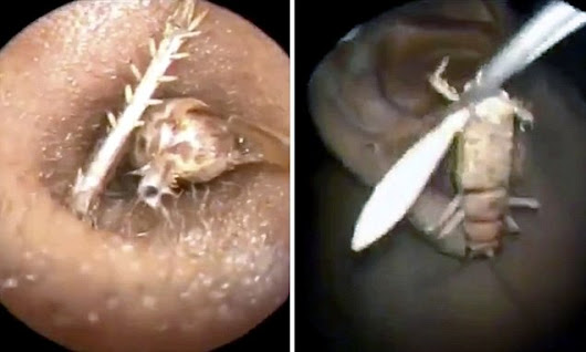 Doctors find three-inch insect alive in man's head who had 'itchy ear'