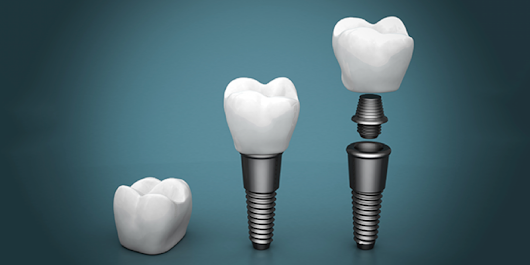 New Trends in Dental Implants