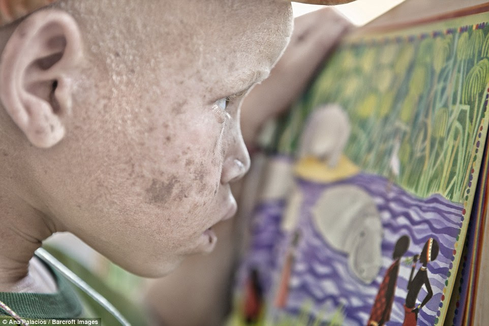 A young girl with albinism inspects her artwork at the centre, which tries to offer schooling and opportunities for those that seek refuge there