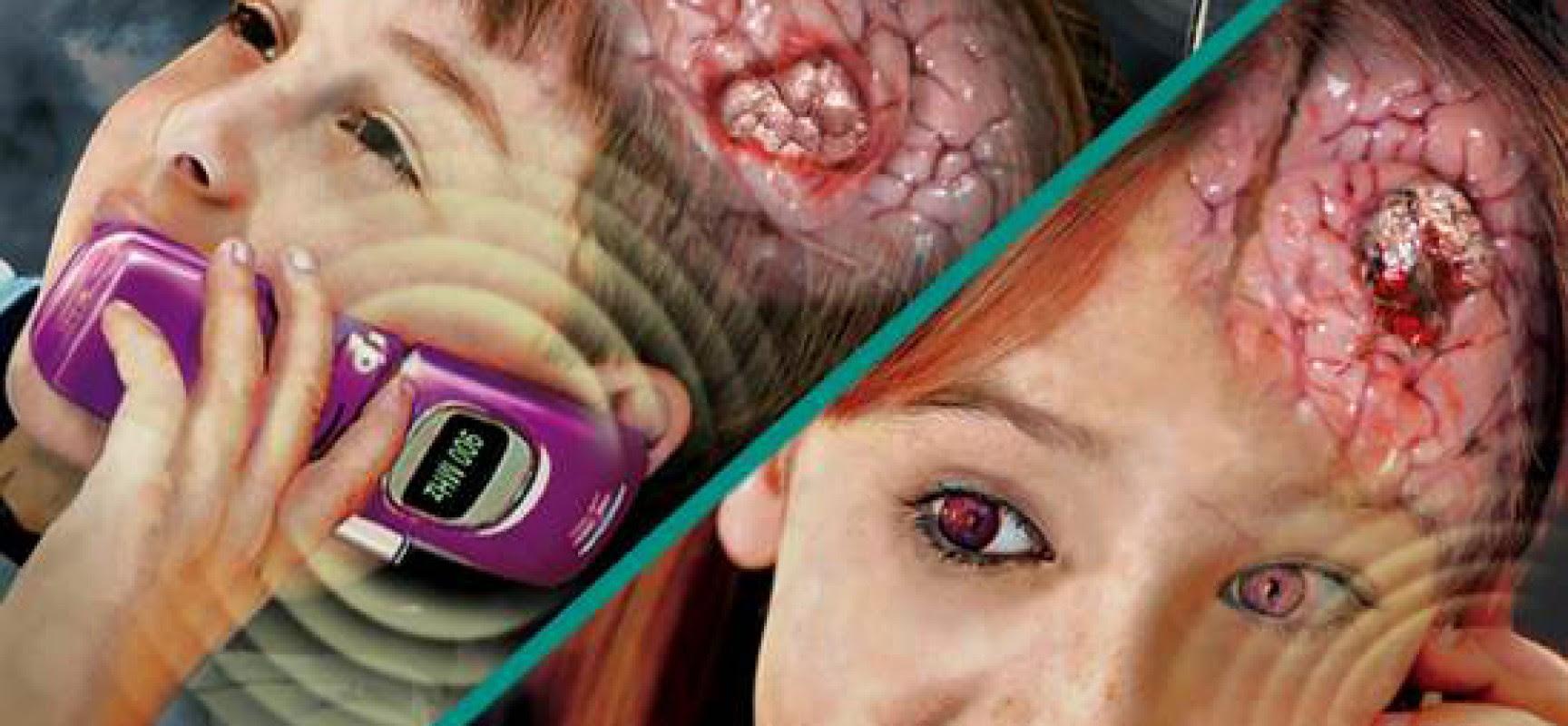 Αποτέλεσμα εικόνας για καρκίνος