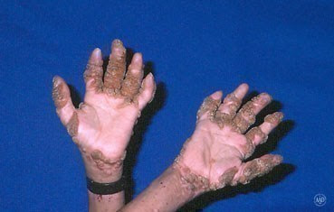 warts in boy with HIV