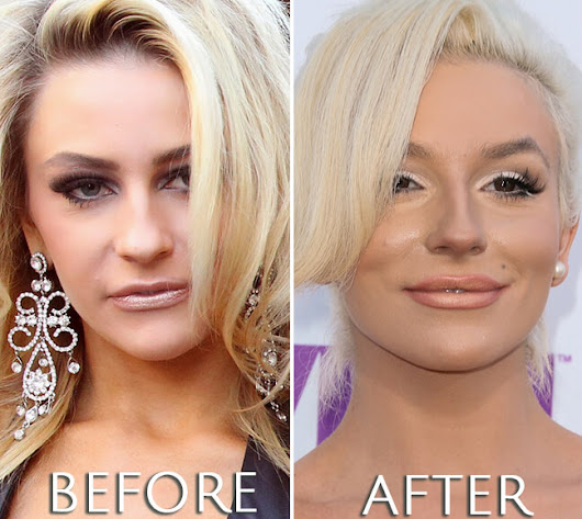 Courtney Stodden Before & After Plastic Surgery Photos